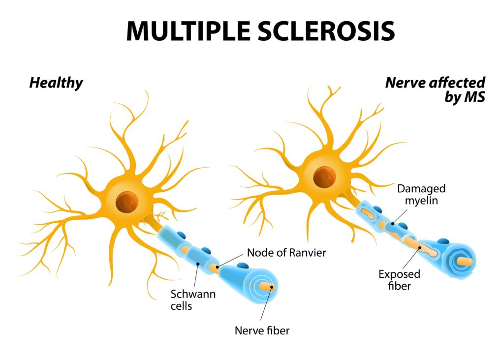 can medical marijuana help your multiple sclerosis